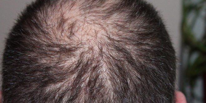 Saç Dökülmesi Nedir