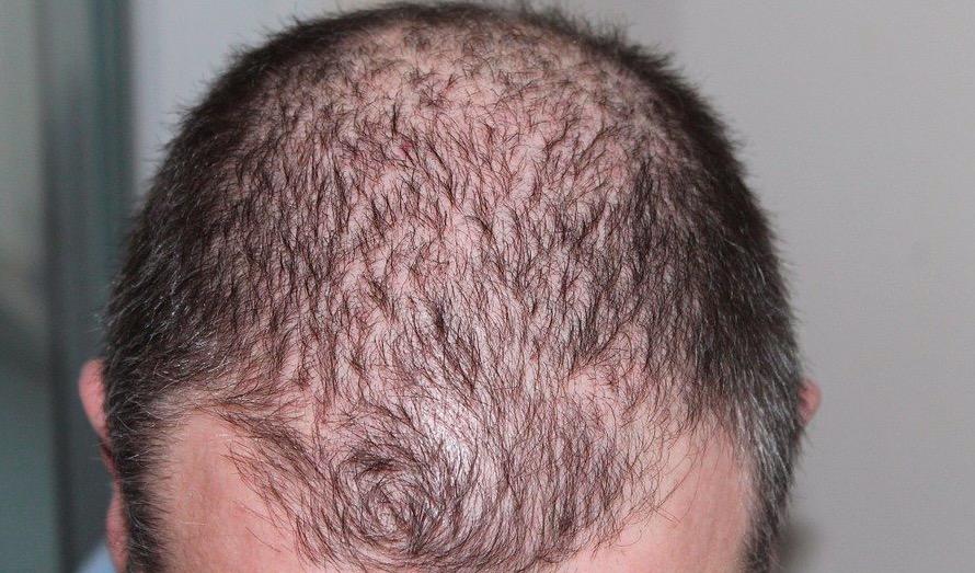 Saç Ekimi Operasyonu