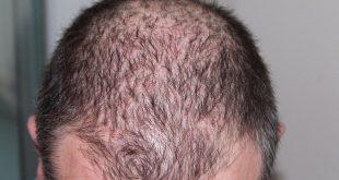 ekilen saç dökülme