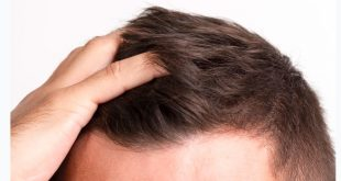 saç ekimi şişlik