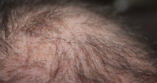 Saç Ekimi Sonrası Dikkat Etmeniz Gerekenler
